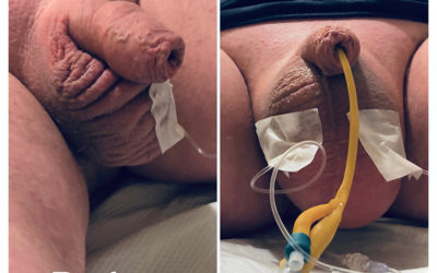 Scrotal Infusion